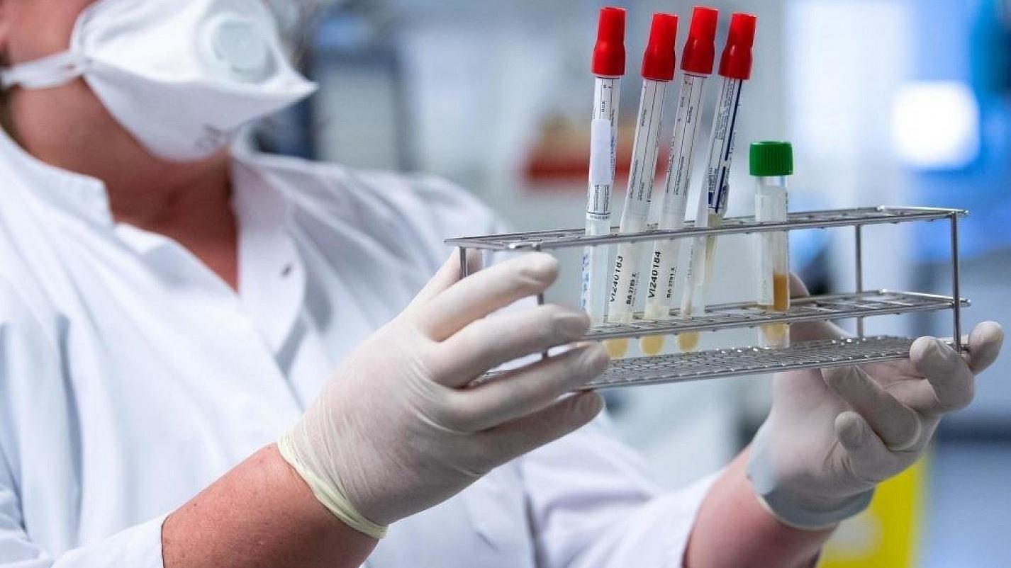 727 Corona-Infektionen wurden im Landkreis Amberg-Sulzbach im Kalenderjahr 2021 registriert.