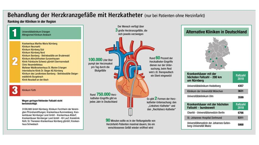 Das Universitätsklinikum Erlangen und das Anregiomed-Klinikum Ansbach zeigen in der Auswertung der Qualitätsdaten sehr gute Ergebnisse bei Herzkatheter-Eingriffen. Um die Infografik in voller Auflösung zu sehen, klicken Sie hier.