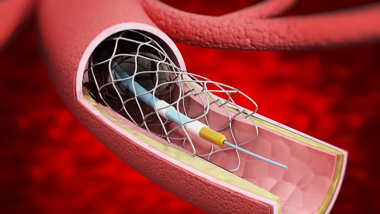 Diese Illustration zeigt, wie sich mittels eines Herzkatheters eine Gefäßstütze aus feinstem Draht - ein Stent - in das Blutgefäß einsetzen lässt.