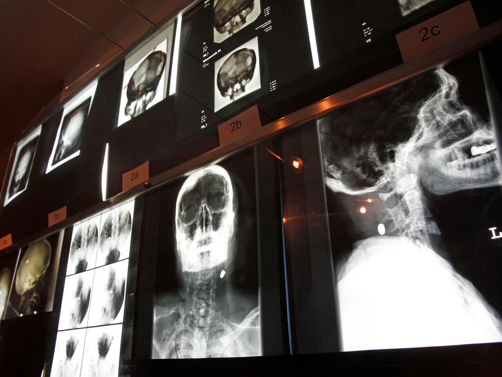 Redaktion: Fürth..Foto: Edgar Pfrogner..Motiv: Eröffnung Fürther Kriminalmuseum in den Kellerräumen des Rathauses...Datum: 22.09.10