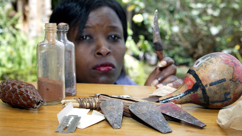 Mit solchen Instrumenten werden in vielen Ländern (hier in Kenia) Genitalverstümmelungen durchgeführt. Jedes vierte Mädchen stirbt an den Folgen des Eingriffs.