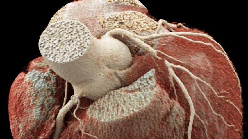 Verkalkte Arterien: Wer profitiert wirklich von einem