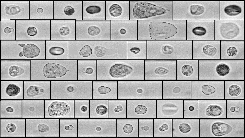Zig kleine Selfies der Blutzellen: Eine Hochgeschwindigkeitskamera fertigt in wenigen Sekunden über 1000 Bilder an. Die Ergebnisse können Aufschluss über das Long-Covid-Syndrom geben.