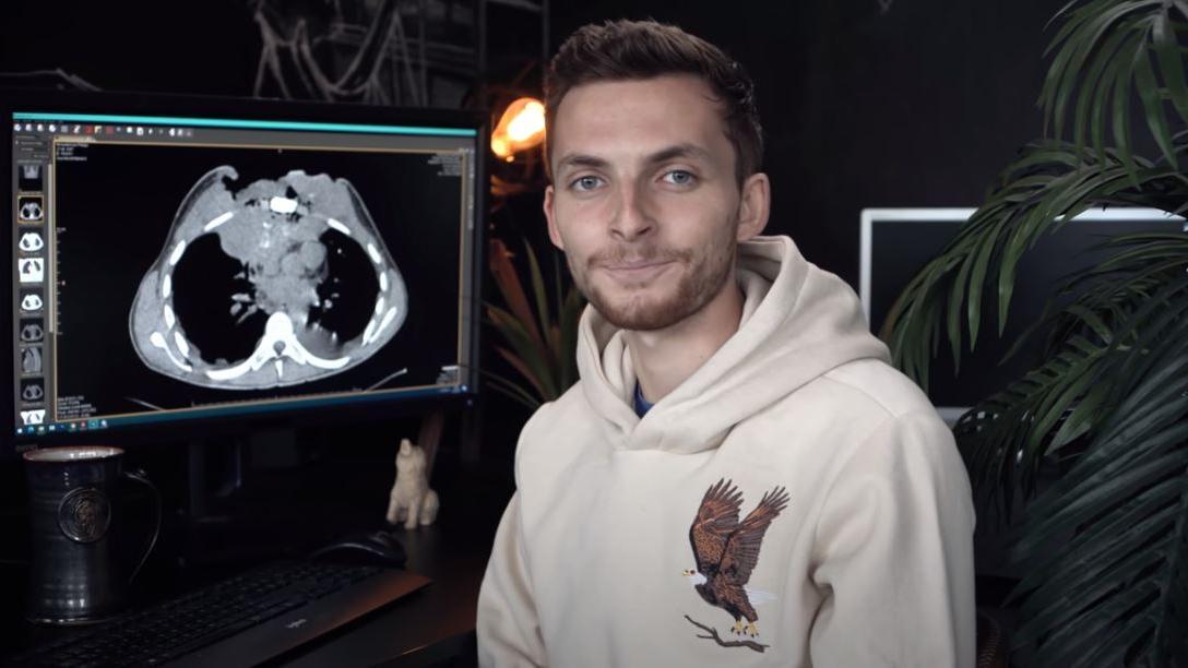 Hunderttausende verfolgten Mickenbecker und seine Krankheit auf YouTube.