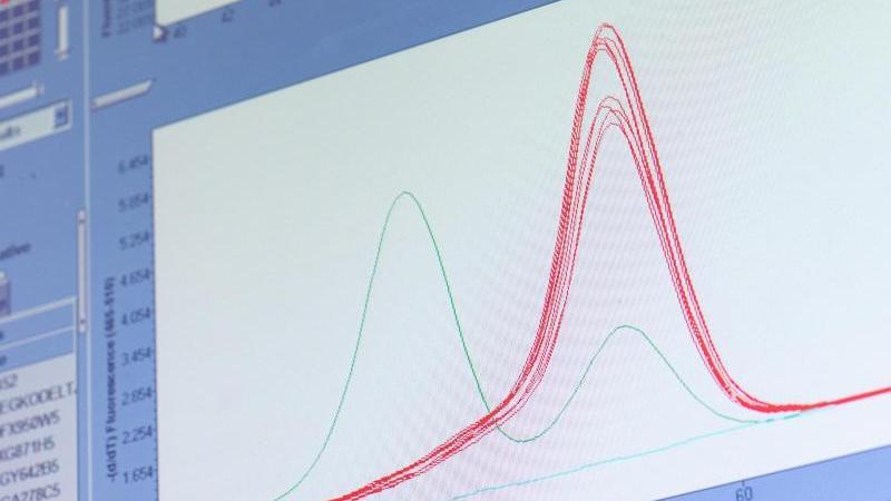 Eine rote «Schmelzkurve» zeigt auf einem Monitor im Labor von Bioscientia die «Delta-Variante» des Virus.