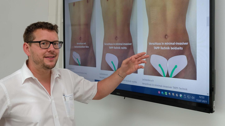Dr. Gerald Prechtl, kommissarischer Chefarzt der Allgemein- und Viszeralchirurgie an der Klinik Hallerwiese, zeigt, wie die minimal-invasive Tapp-Technik bei einer Leistenbruch-OP funktioniert.