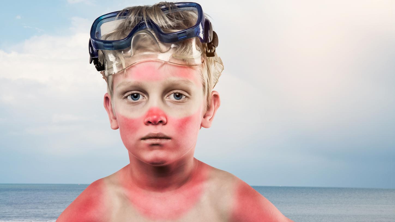 Kinder erleiden deutlich schneller als Erwachsene einen Sonnenbrand, weil ihre Haut viel empfindlicher ist. Sie sollten besonders gut geschützt werden.