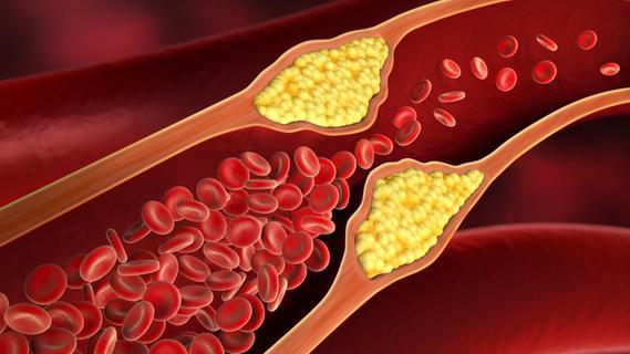Herzkatheter-Eingriffe: Welche Klinik ist am besten?