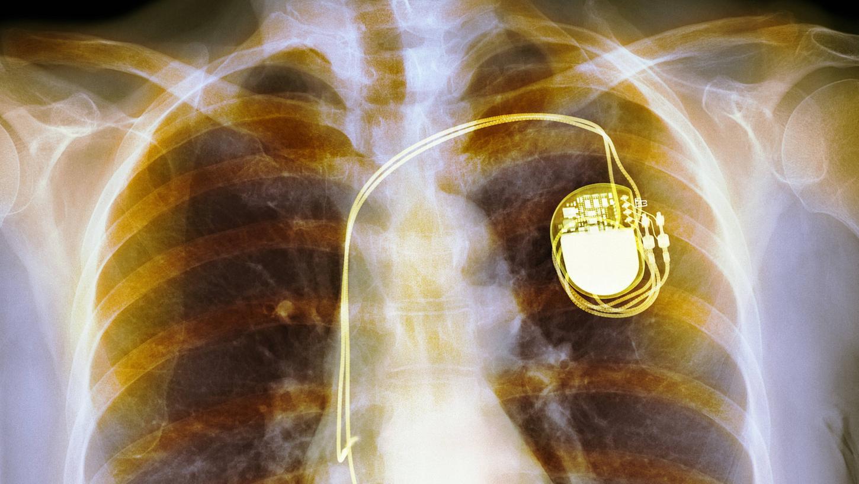 Das Röntgenbild zeigt einen klassischen Zweikammer-Herzschrittmacher im Brustkorb eines Menschen.