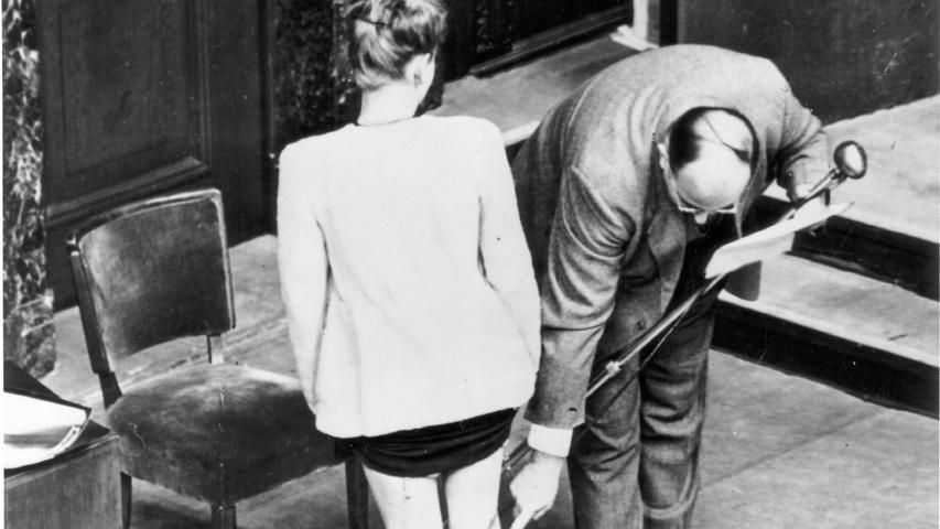 Die polnische Studentin J. Dzido, die im KZ Ravensbrück inhaftiert war, zeigt die Spuren der an ihr vorgenommenen medizinischen Experimente. Die Narben an den Beinen sprechen für sich.