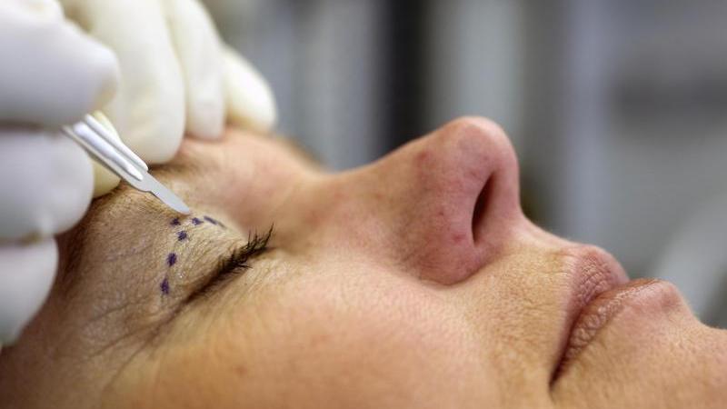 21 Prozent der Frauen und 8 Prozent der Männer sind einer Augenlidstraffung nicht abgeneigt.