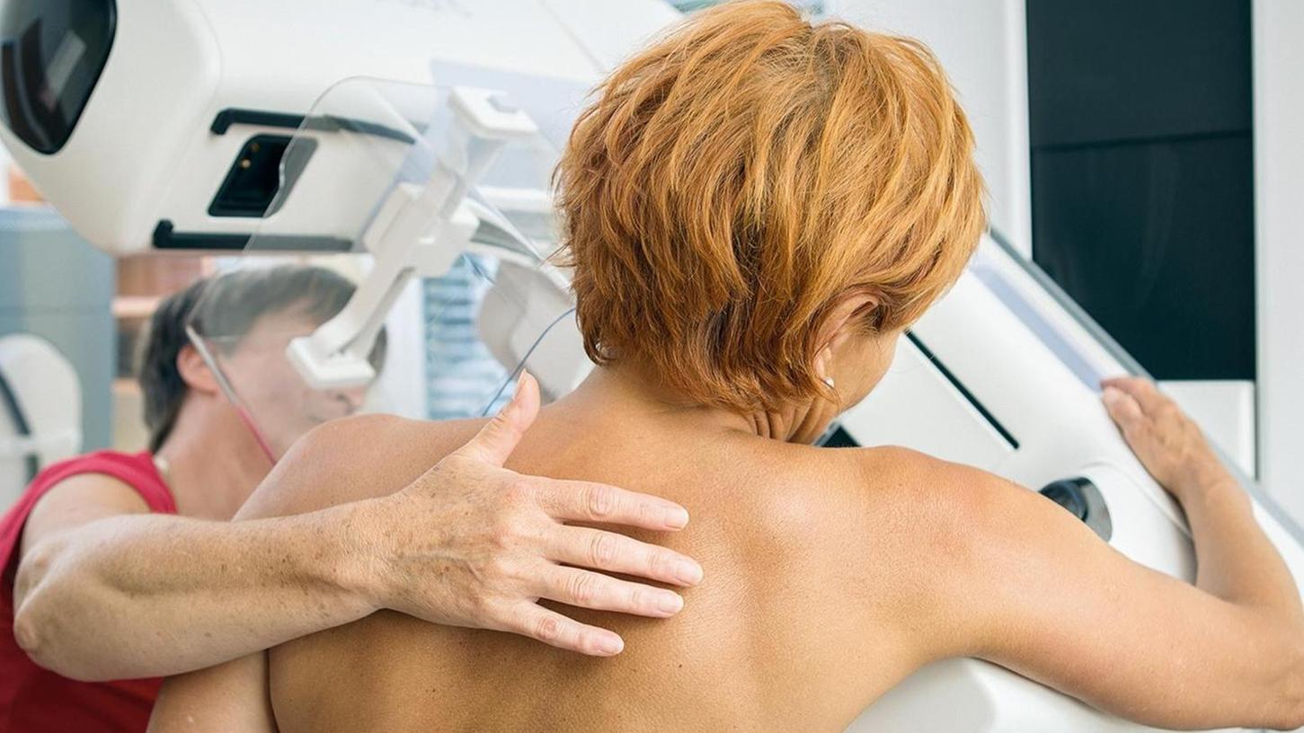 Mithilfe der Mammografie lässt sich Brustkrebs frühzeitig erkennen.