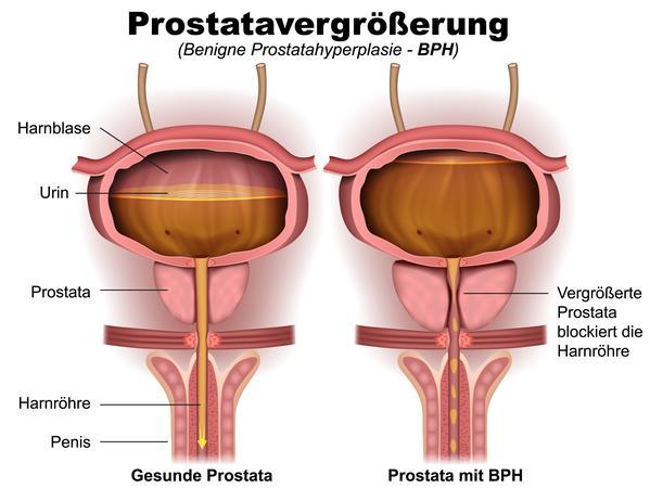 Die Abbildung zeigt eine Prostatavergrößerung.