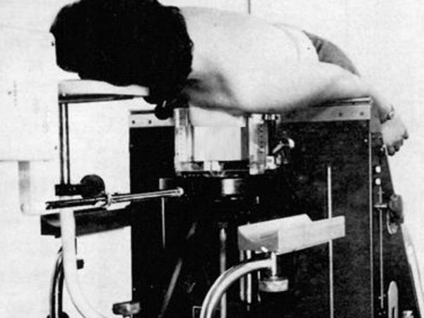 Sieht nicht nur unbequem aus, war es sicher auch: Bei der Diagnose mit Hilfe dieses Fluidographen der Siemens-Reiniger-Werke wurde die zu untersuchende Brust in ein Alkoholbad getaucht — weil das spezifische Gewicht des Alkohols etwa dem des Brustgewebes entspricht und die Röntgenaufnahme dadurch besser war.