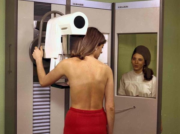 """Das erste """"echte"""" Mammographie-Gerät von Siemens, das speziell für die Untersuchung der weiblichen Brust entwickelt wurde, kam ab 1972 zum Einsatz."""